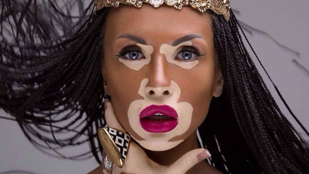 Vitiligo-resumen